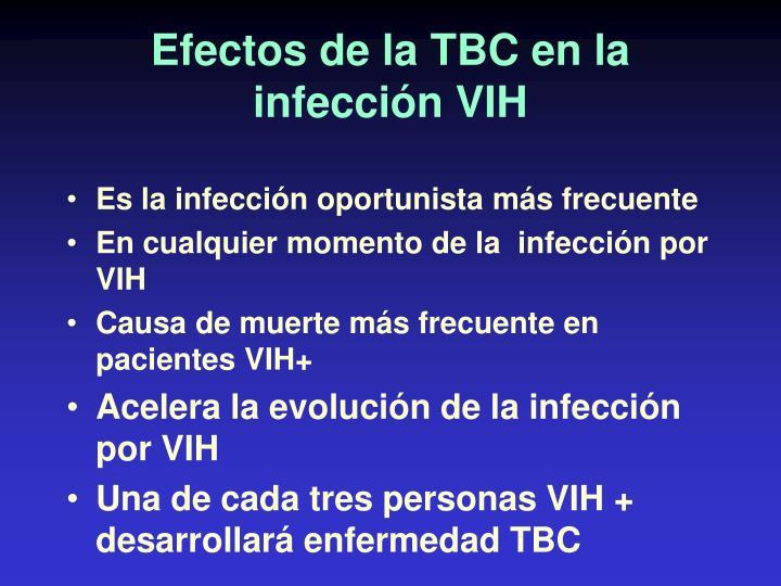 Efectos de la TBC en la infección VIH