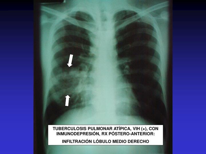 TUBERCULOSIS PULMONAR ATÍPICA, VIH (+), CON INMUNODEPRESIÓN, RX PÓSTERO-ANTERIOR: