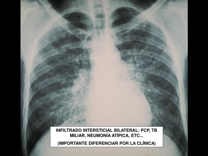 INFILTRADO INTERSTICIAL BILATERAL: PCP, TB MILIAR, NEUMONÍA ATÍPICA, ETC...