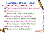 example brain tumor