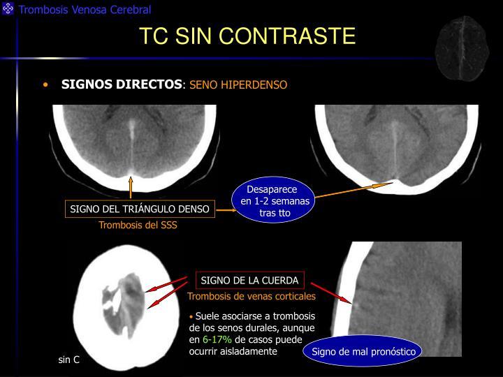 """PPT - TROMBOSIS VENOSA CEREBRAL """" Lo que el radiólogo general debe ..."""