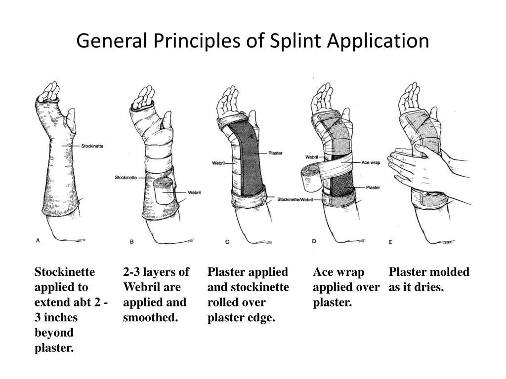 Ppt Splinting Workshop Broward General Medical Center
