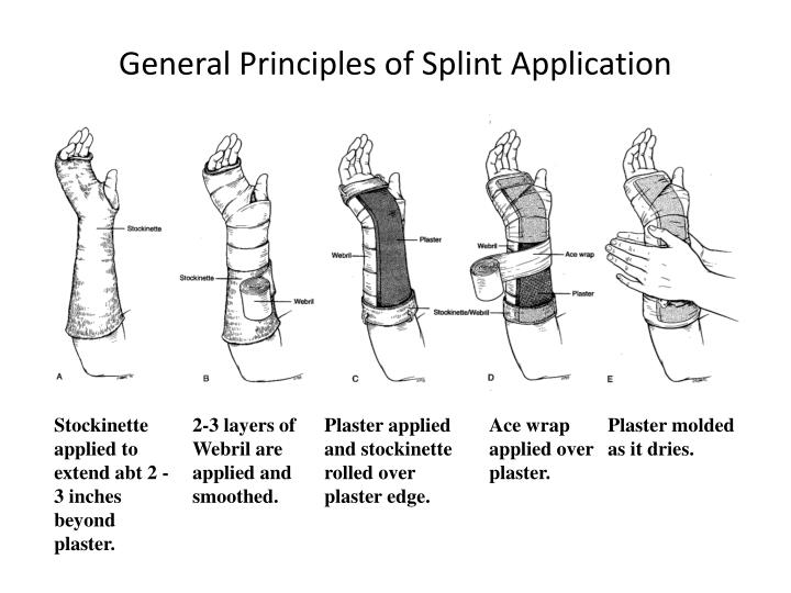 Ppt Splinting Workshop Broward General Medical Center