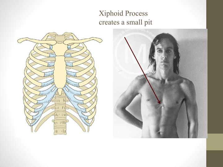 Xiphoid Process creates a small pit
