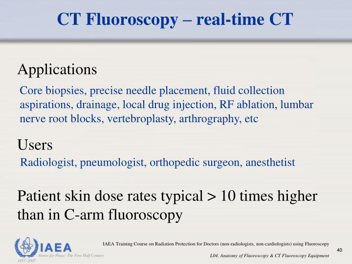 CT Fluoroscopy – real-time CT