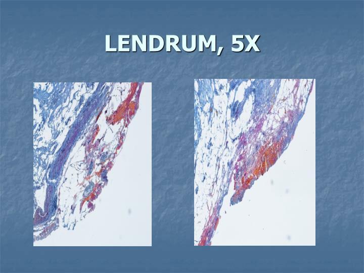 LENDRUM, 5X