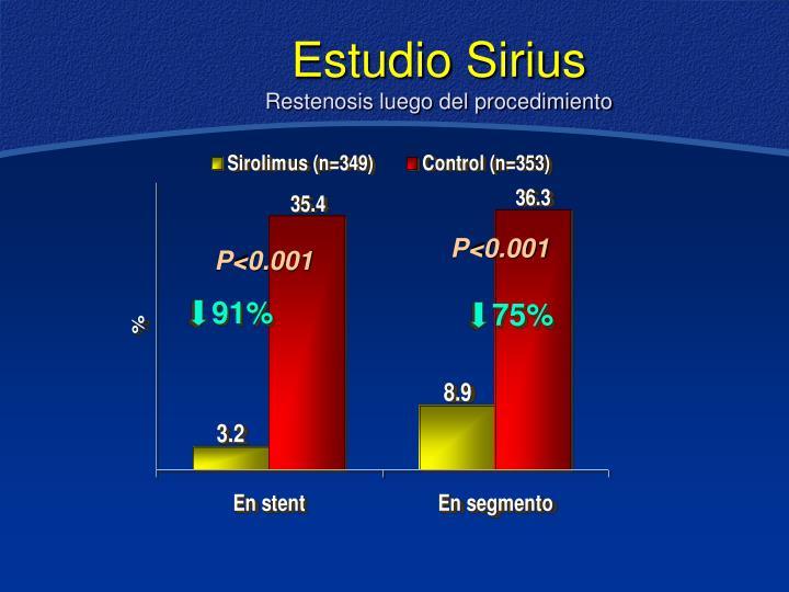 Estudio Sirius