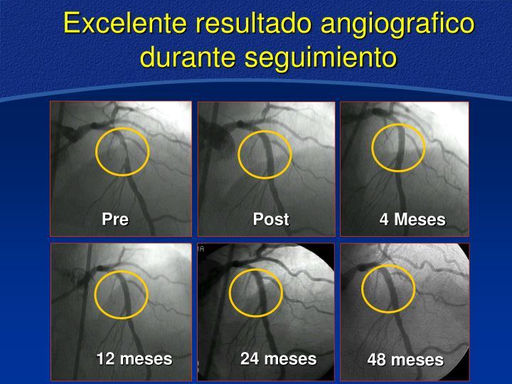 Excelente resultado angiografico durante seguimiento