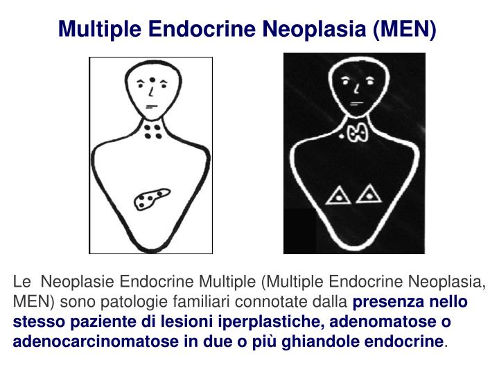 Multiple Endocrine Neoplasia (MEN)