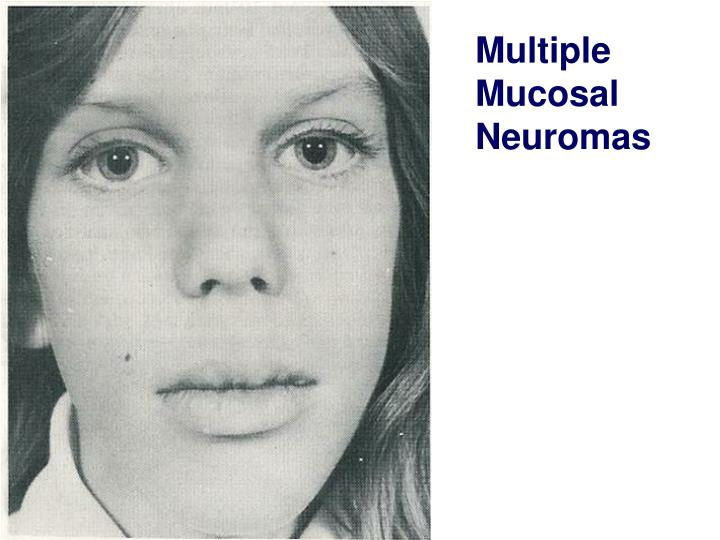 Multiple Mucosal Neuromas