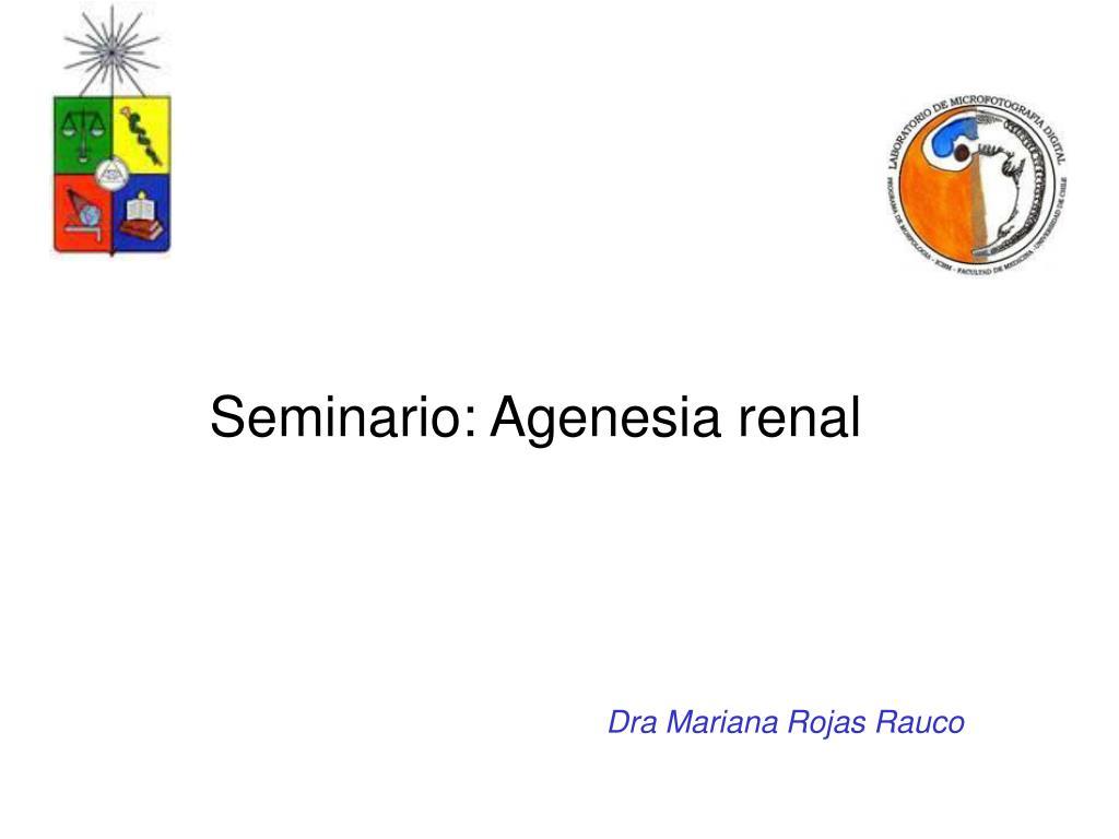 agenesia renal unilateral definicion