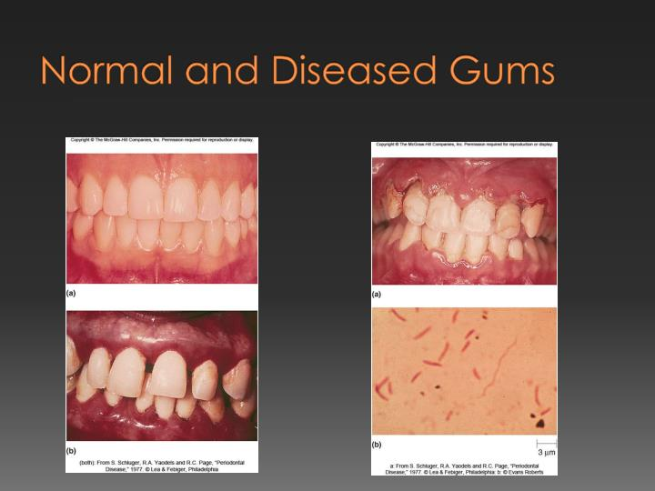 Normal and Diseased Gums