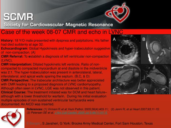 case of the week 08 07 cmr and echo in lvnc