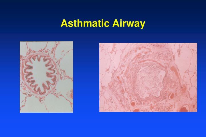 Asthmatic Airway