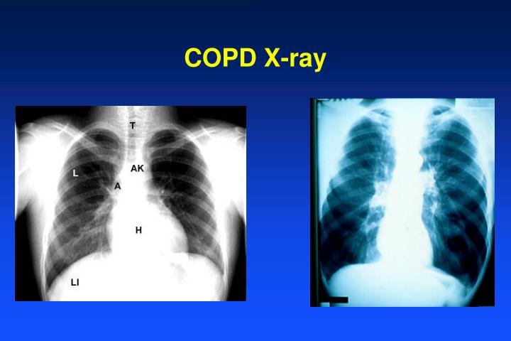 COPD X-ray