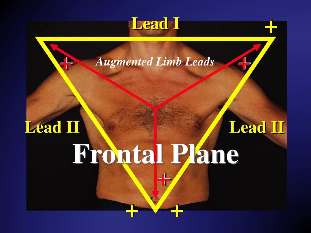 PPT - 12 Lead EKG Interpretation PowerPoint Presentation, free download - ID:4337126