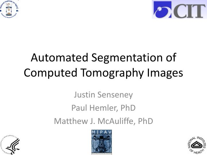 automated segmentation of computed tomography images n.