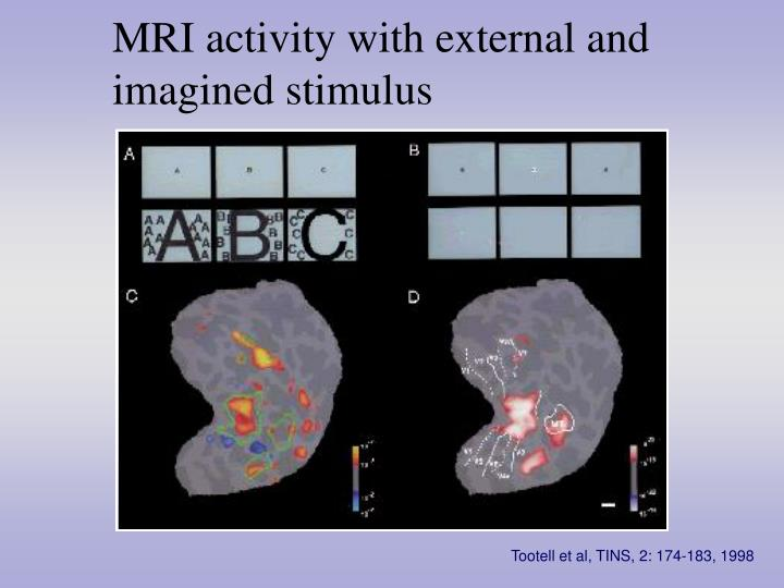 MRI activity with external and imagined stimulus