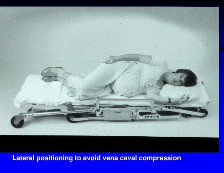 Lateral positioning to avoid vena caval compression