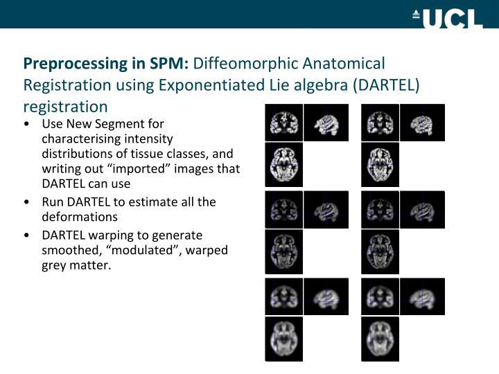 Preprocessing in SPM: