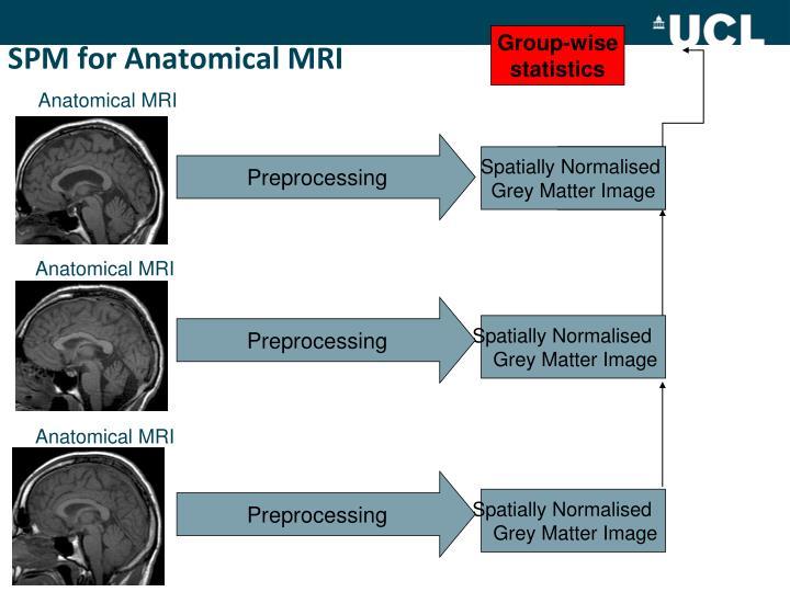 SPM for Anatomical MRI