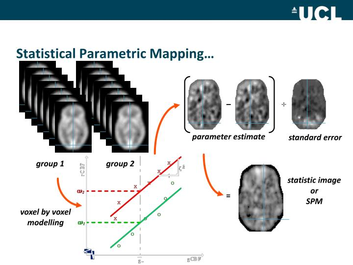 Statistical Parametric Mapping…