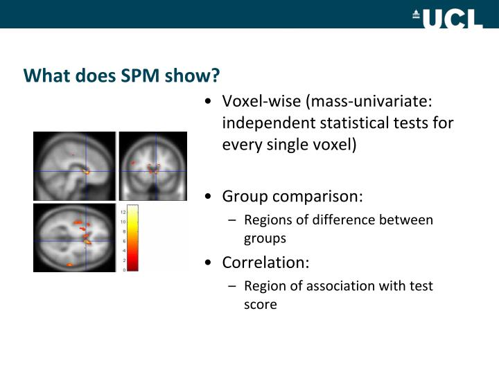 What does SPM show?