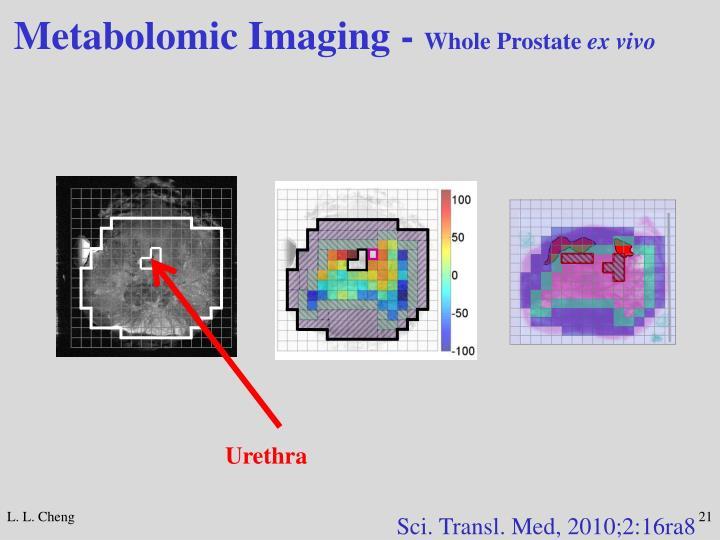Metabolomic Imaging -