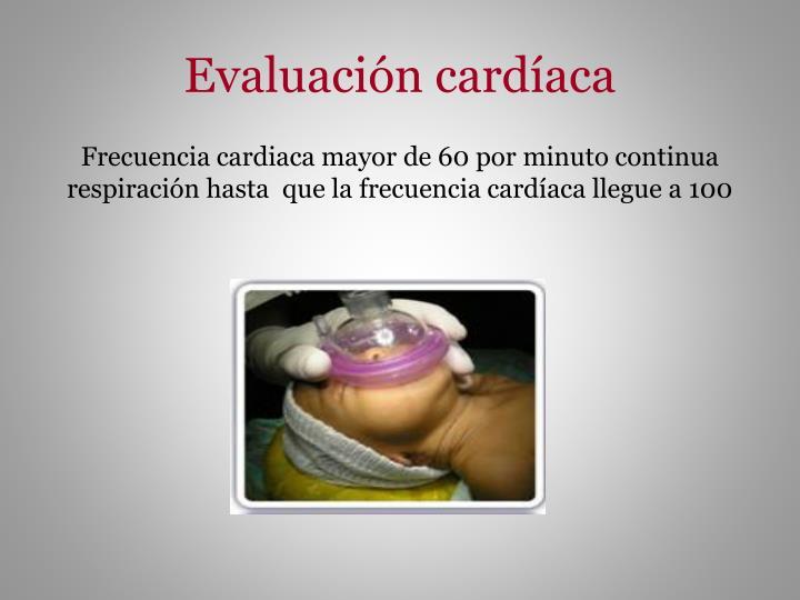 Evaluación cardíaca