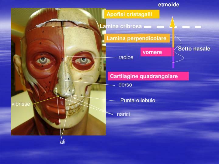 Etmoide