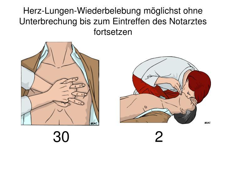 Herz-Lungen-Wiederbelebung möglichst ohne Unterbrechung bis zum Eintreffen des Notarztes  fortsetzen