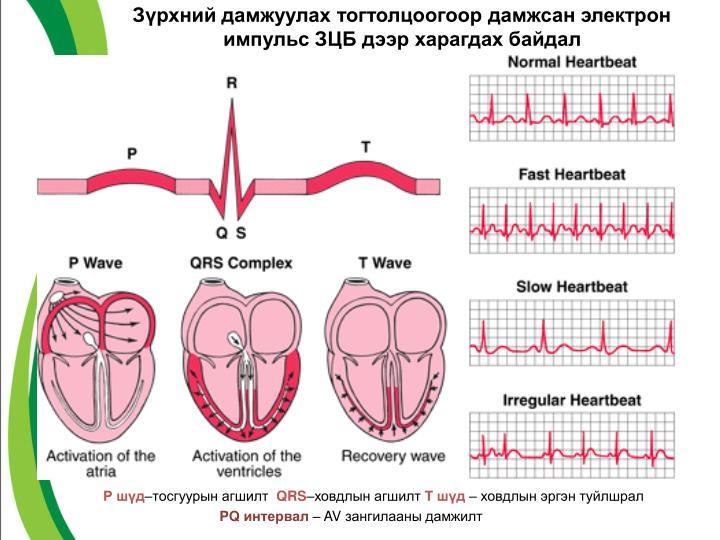 Зүрхний дамжуулах тогтолцоогоор дамжсан электрон импульс ЗЦБ дээр харагдах байдал