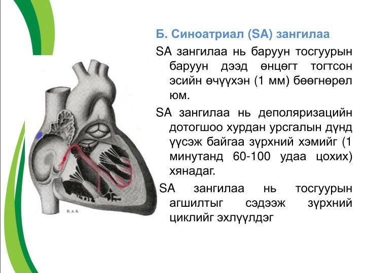 Б. Синоатриал (
