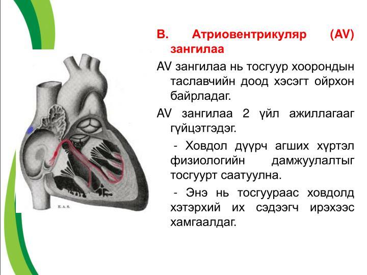 В. Атриовентрикуляр (
