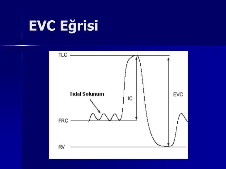 EVC Eğrisi