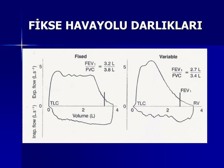 FİKSE HAVAYOLU DARLIKLARI