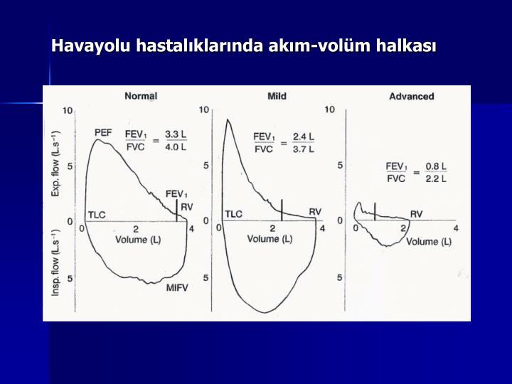 Havayolu hastalıklarında akım-volüm halkası