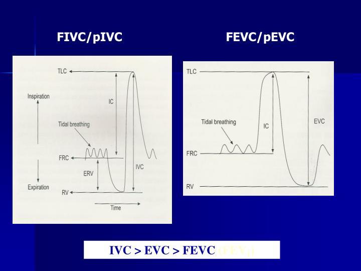FIVC/pIVC