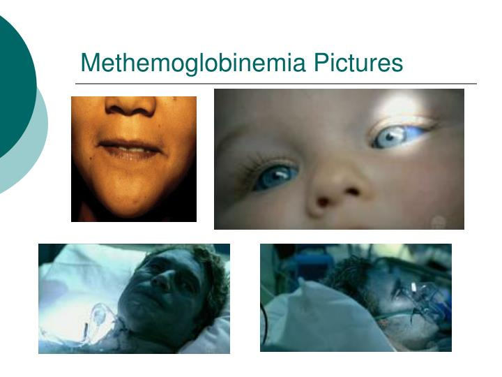hereditary methemoglobinemia the blue people disease Coronary artery disease no pharmacologic treatment exists for hereditary forms of methemoglobinemia blue people: the systemic effects of blue.