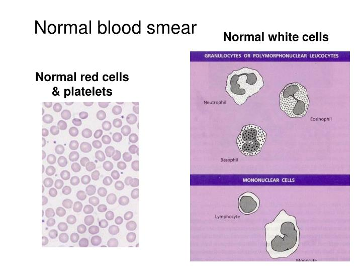 Normal blood smear