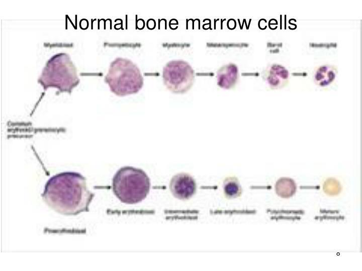 Normal bone marrow cells