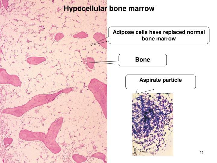 Hypocellular bone marrow