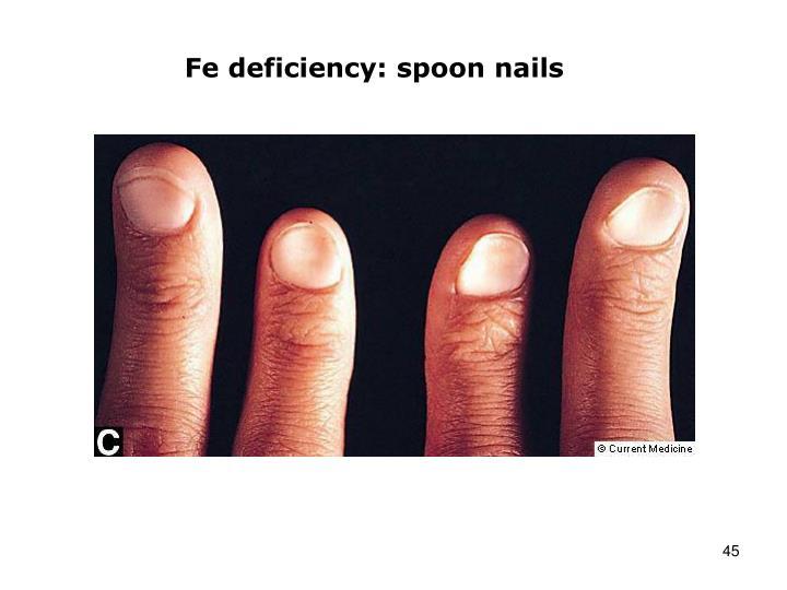 Fe deficiency: spoon nails