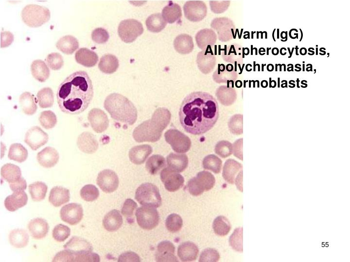 Warm (IgG) AIHA:pherocytosis, polychromasia, normoblasts