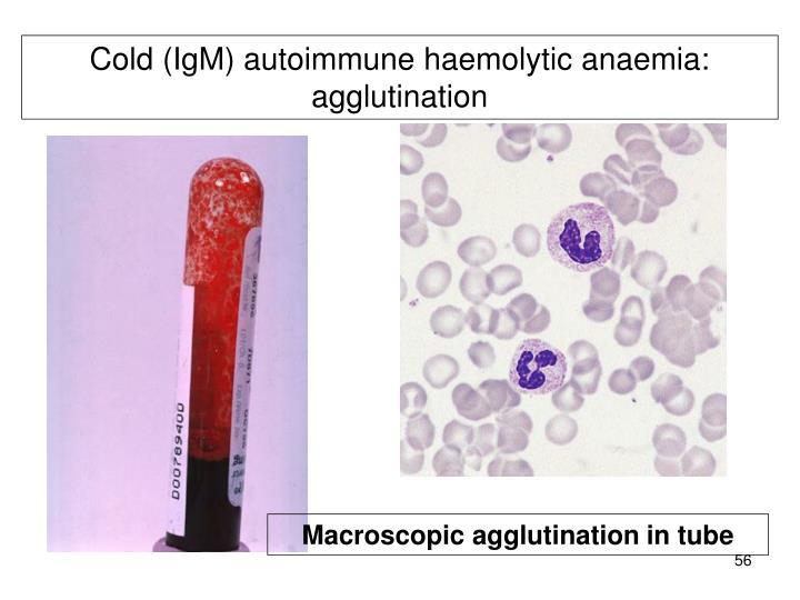 Cold (IgM) autoimmune haemolytic anaemia: agglutination