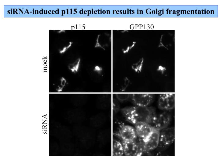siRNA-induced p115 depletion results in Golgi fragmentation