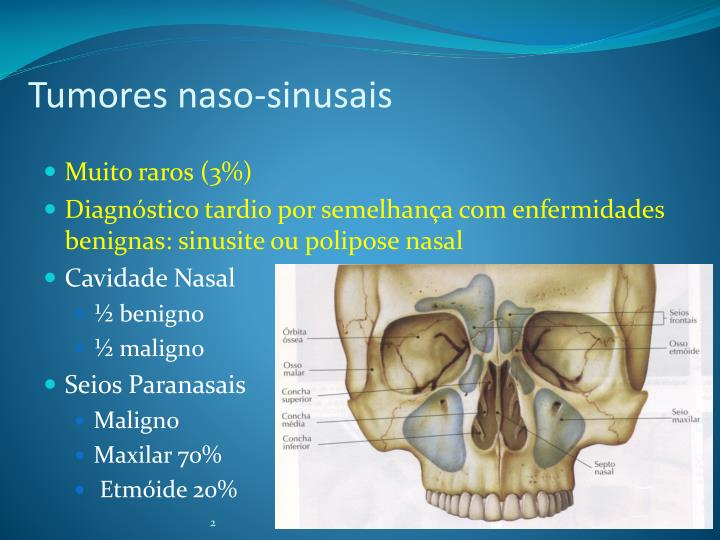 Tumores naso sinusais1