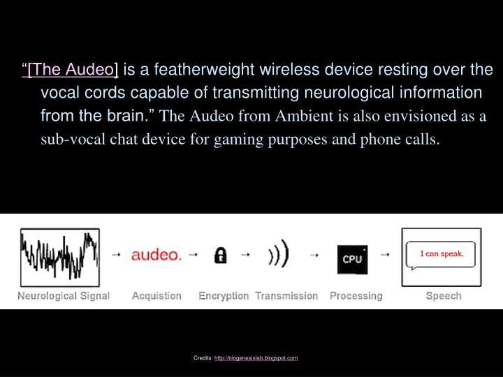 """[The Audeo"