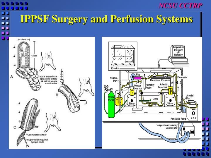 IPPSF Surgery and Perfusion Systems