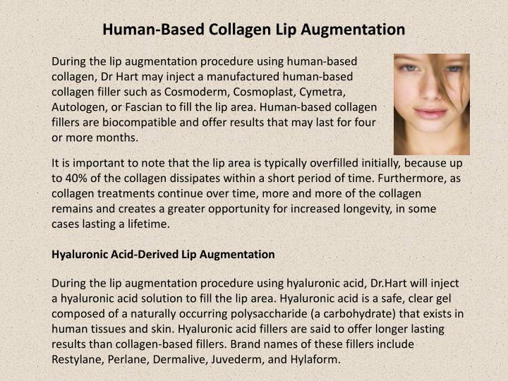 Human-Based Collagen Lip Augmentation